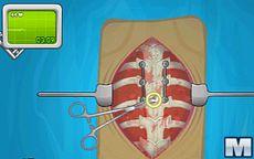 Operate Now: Scoliosis Surgery - Operazione alla colonna vertebrale