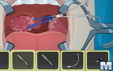 Operate now: Operazione alle tonsille